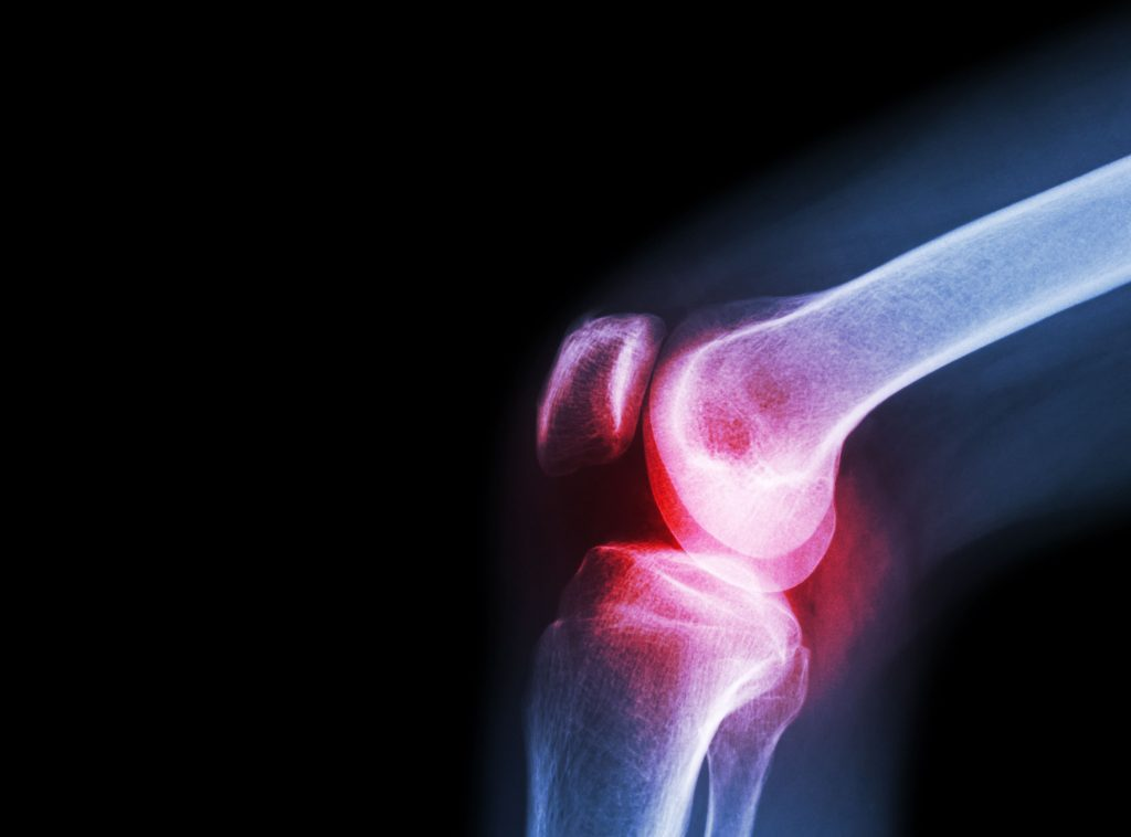 film x ray knee joint with arthritis gout rheumatoid arthritis osteoarthritis knee 1